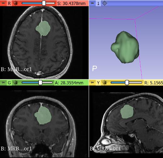 MR Brain Tumor